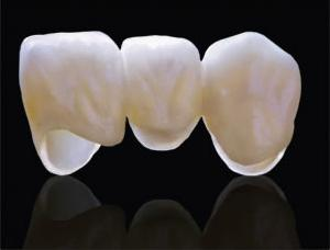 ALl ceramic anterior bridge