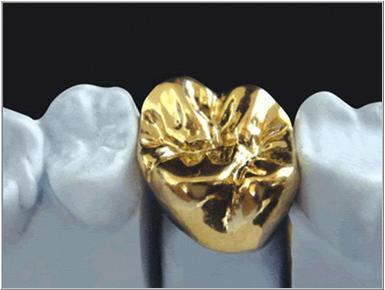 Full gold crown