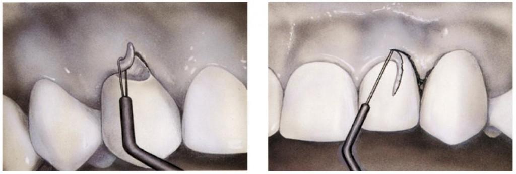 Crown lengthening procedure utilising electrosurgery