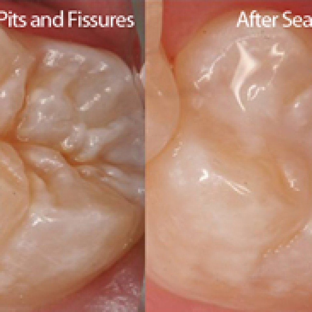 Pit and fissure sealant
