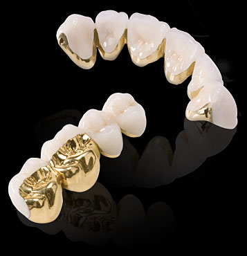 Porcelain fused to gold bridge