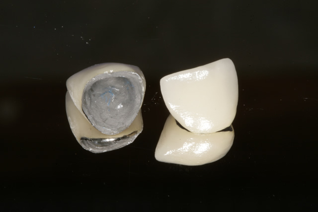 Porcelain fused to metal (fitting surface)