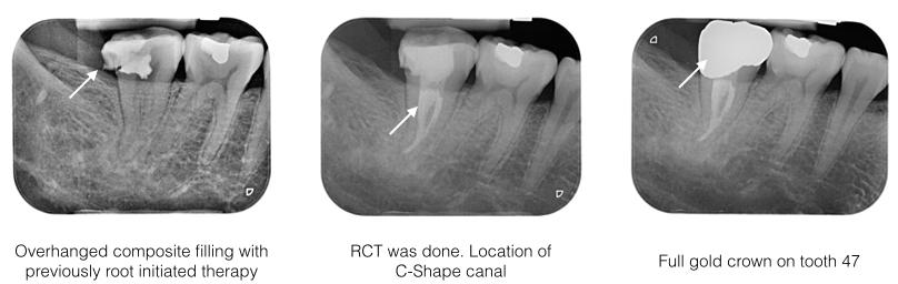 RCT Case 3