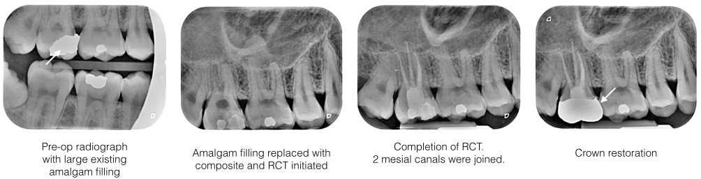 RCT Case 4