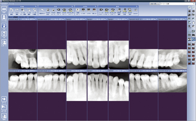Romexis - Digital X-ray Software