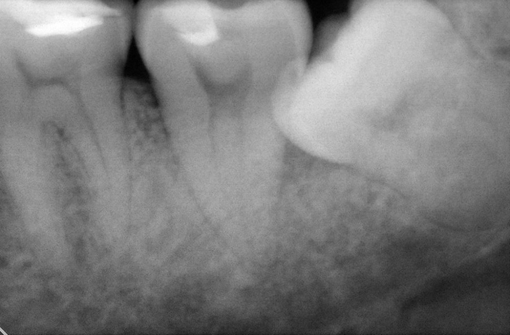 Fig 1 : Pre-operation x-ray shows impacted wisdom tooth