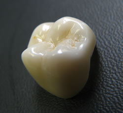 Porcelain bonded to zirconia crown